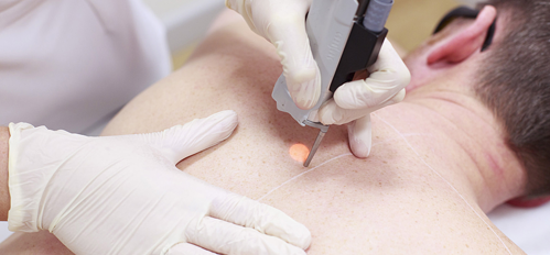 Hair Removal with Laser Machines